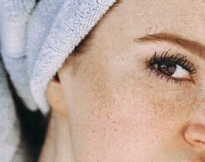 Inicia tu día con esta rutina facial si tienes manchas en la piel