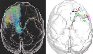 Científicos chinos escanean la primera imagen 3D de alta resolución de un cerebro de mono