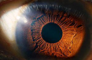 Alteraciones en los ojos, el nuevo síntoma post covid-19