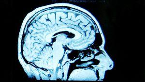 El coronavirus puede afectar también la capacidad de aprendizaje