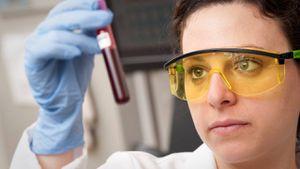 Coronavirus: más estudios vinculan gravedad de Covid-19 con el tipo de sangre